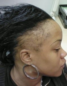 traction alopecia caused by tight weaves